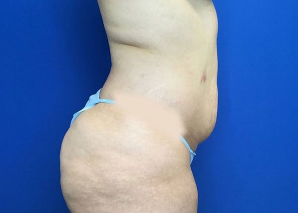 Liposuction Gallery - Patient 10945505 - Image 3