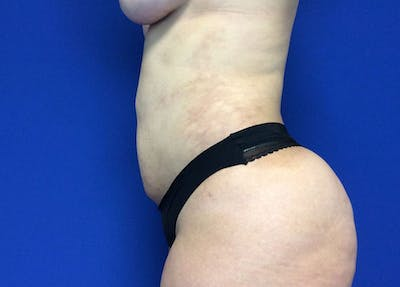 Liposuction Gallery - Patient 10945505 - Image 6