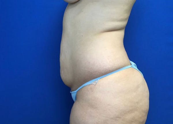 Liposuction Gallery - Patient 10945505 - Image 5