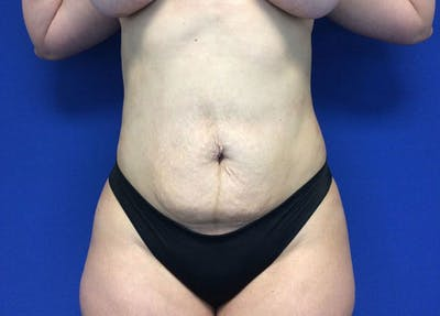 Liposuction Gallery - Patient 10945505 - Image 2