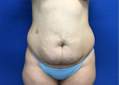 Liposuction Gallery - Patient 10945505 - Image 1