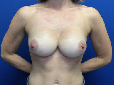 Breast Implant Removal and Replacement Gallery - Patient 13947714 - Image 1