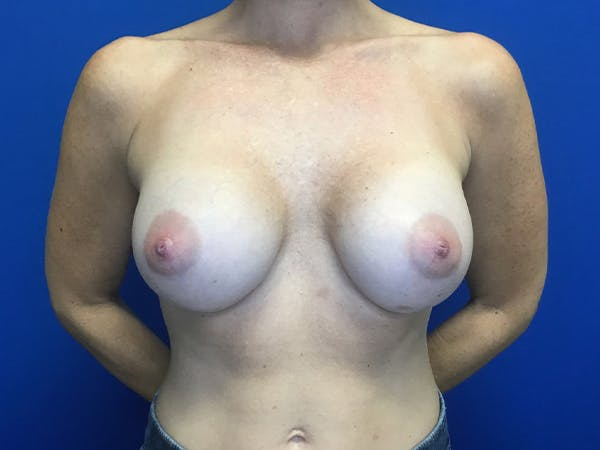 Breast Implant Removal and Replacement Gallery - Patient 13947714 - Image 2