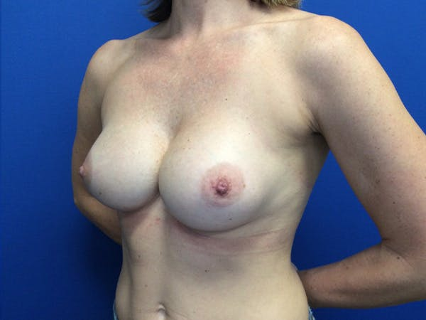 Breast Implant Removal and Replacement Gallery - Patient 13947714 - Image 3