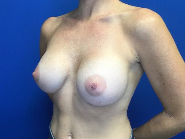 Breast Implant Removal and Replacement Gallery - Patient 13947714 - Image 4