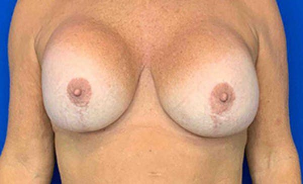 Breast Implant Removal and Replacement Gallery - Patient 21143606 - Image 1