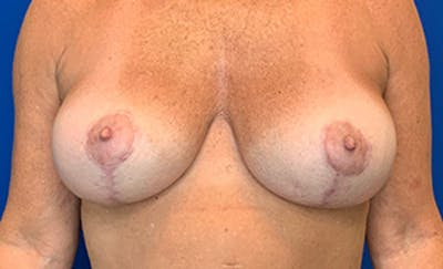 Breast Implant Removal and Replacement Gallery - Patient 21143606 - Image 2