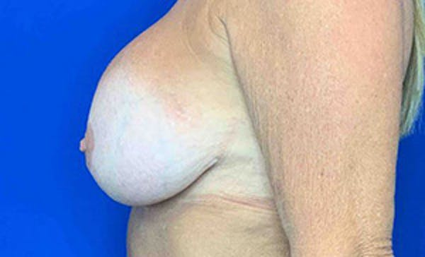 Breast Implant Removal and Replacement Gallery - Patient 21143606 - Image 3