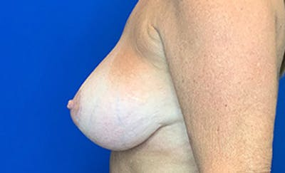 Breast Implant Removal and Replacement Gallery - Patient 21143606 - Image 4