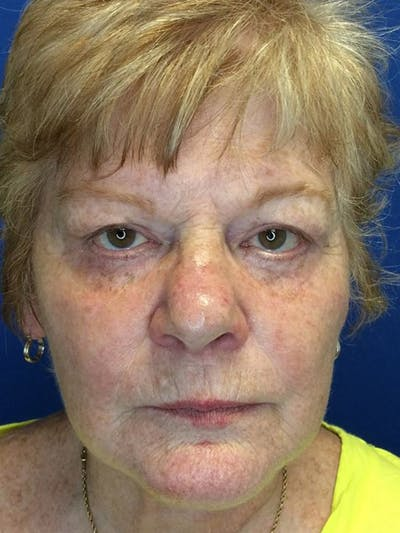 Face Lift Gallery - Patient 21368159 - Image 1