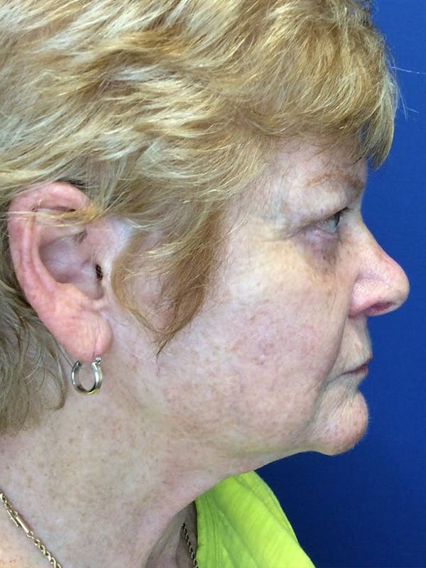Face Lift Gallery - Patient 21368159 - Image 3