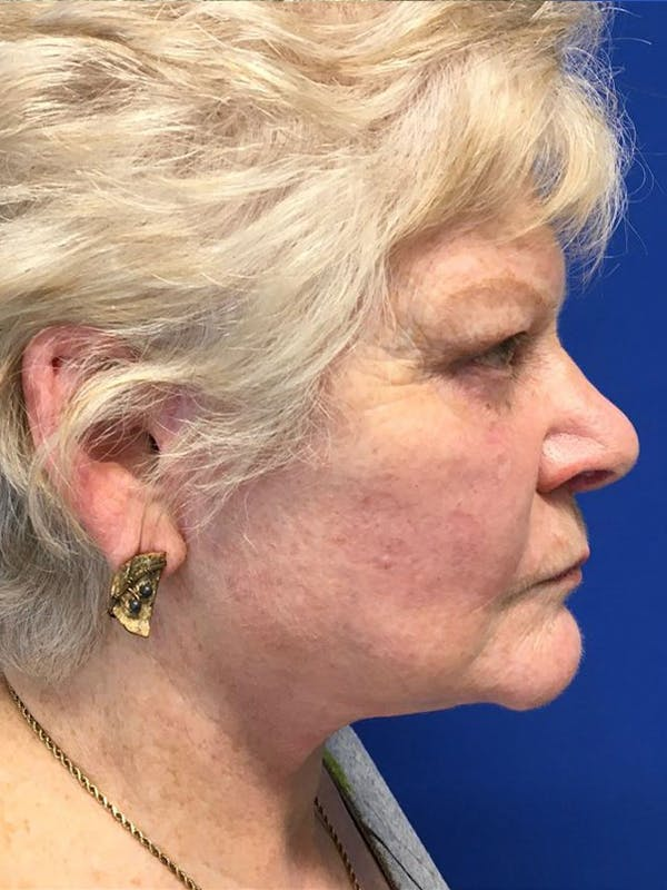 Face Lift Gallery - Patient 21368159 - Image 4