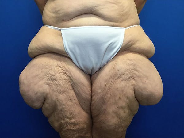 Thigh Lift Gallery - Patient 24963363 - Image 1