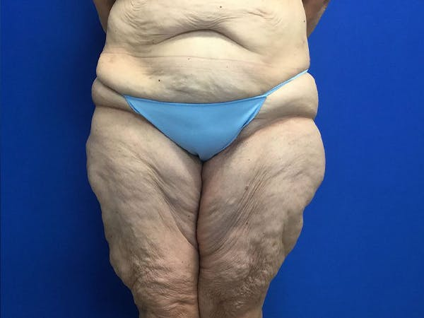 Thigh Lift Gallery - Patient 24963363 - Image 2