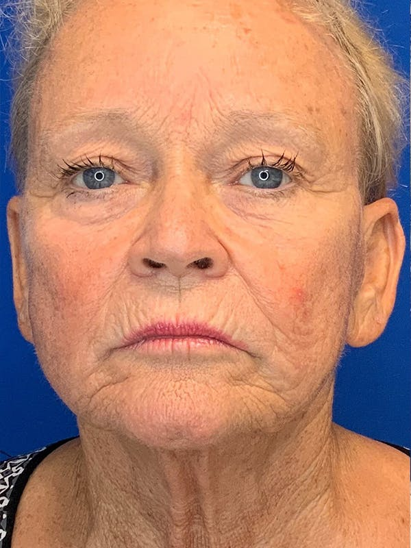 Face Lift Gallery - Patient 25130883 - Image 1