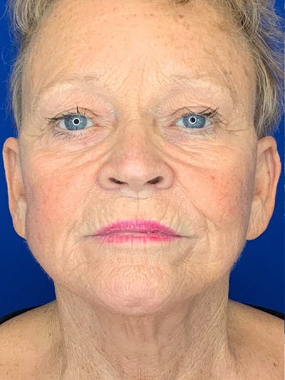 Face Lift Gallery - Patient 25130883 - Image 2