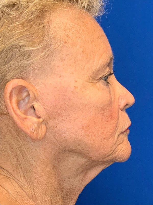 Face Lift Gallery - Patient 25130883 - Image 3