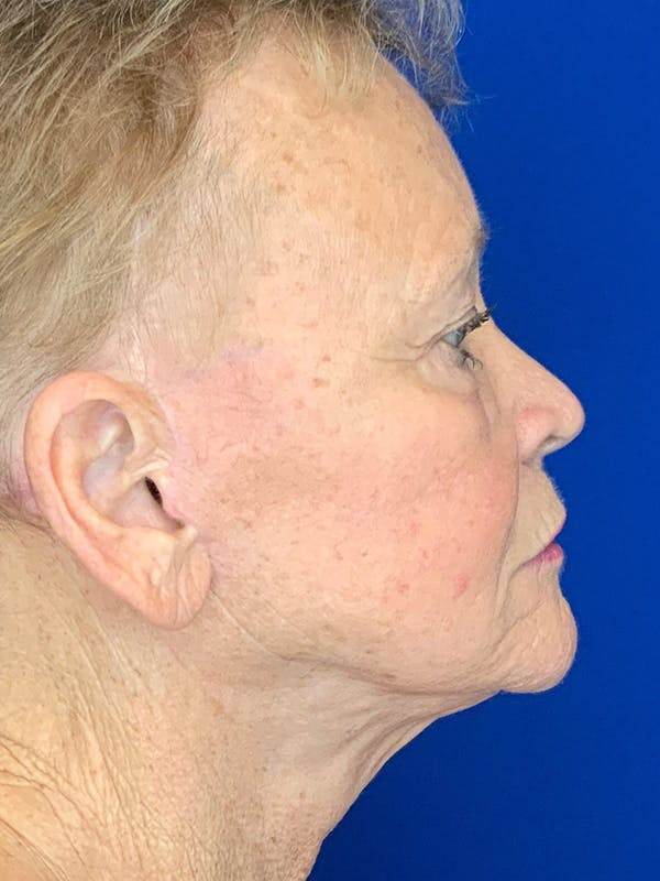 Face Lift Gallery - Patient 25130883 - Image 4