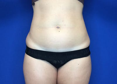 Liposuction Gallery - Patient 36586975 - Image 1