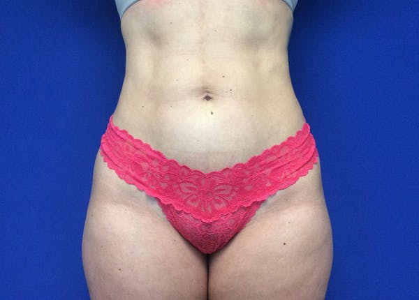 Liposuction Gallery - Patient 36586975 - Image 2