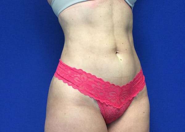Liposuction Gallery - Patient 36586975 - Image 4