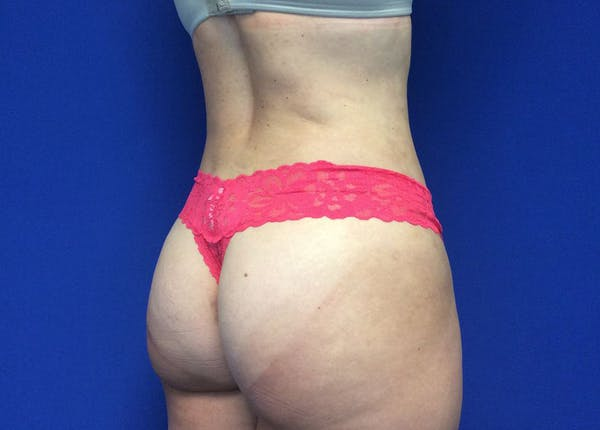 Liposuction Gallery - Patient 36586975 - Image 6