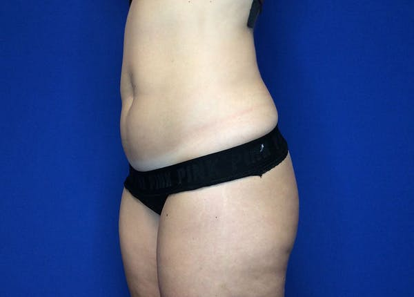 Liposuction Gallery - Patient 36586975 - Image 7