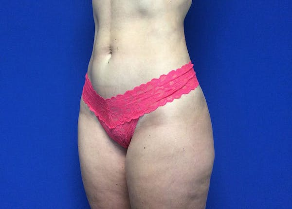 Liposuction Gallery - Patient 36586975 - Image 8