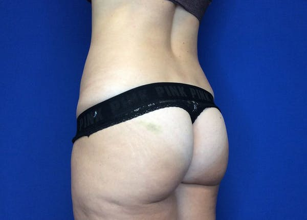 Liposuction Gallery - Patient 36586975 - Image 9