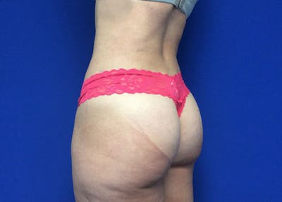 Liposuction Gallery - Patient 36586975 - Image 10