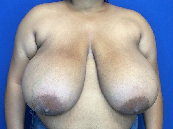 Breast Reduction Gallery - Patient 38891689 - Image 1