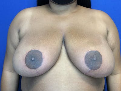 Breast Reduction Gallery - Patient 38891689 - Image 2