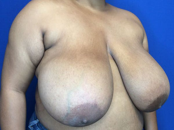 Breast Reduction Gallery - Patient 38891689 - Image 3