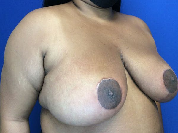 Breast Reduction Gallery - Patient 38891689 - Image 4
