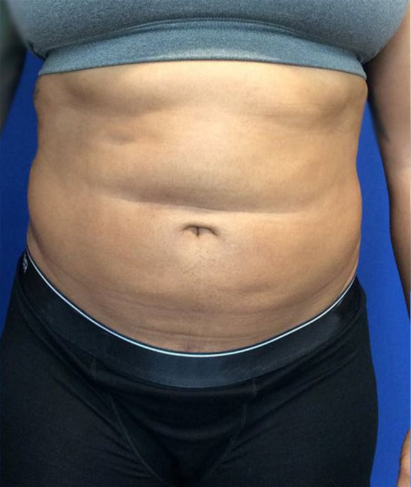 Liposuction Gallery - Patient 45225183 - Image 2