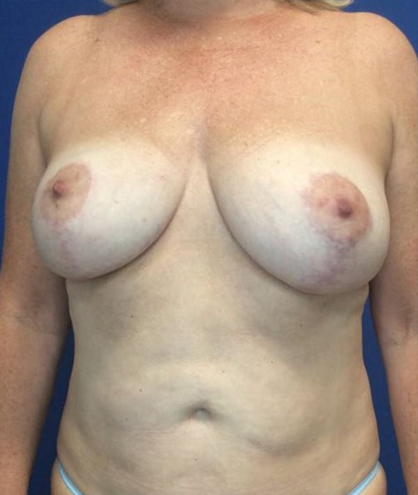 Liposuction Gallery - Patient 4910308 - Image 2
