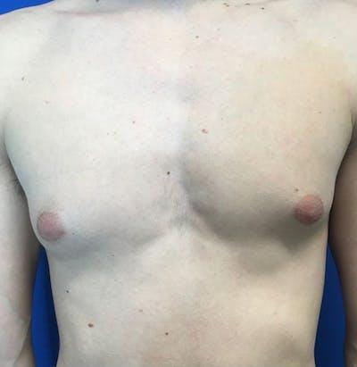 Gynecomastia Gallery - Patient 45390979 - Image 1