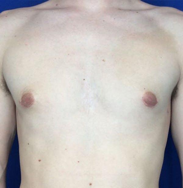Gynecomastia Gallery - Patient 45390979 - Image 2