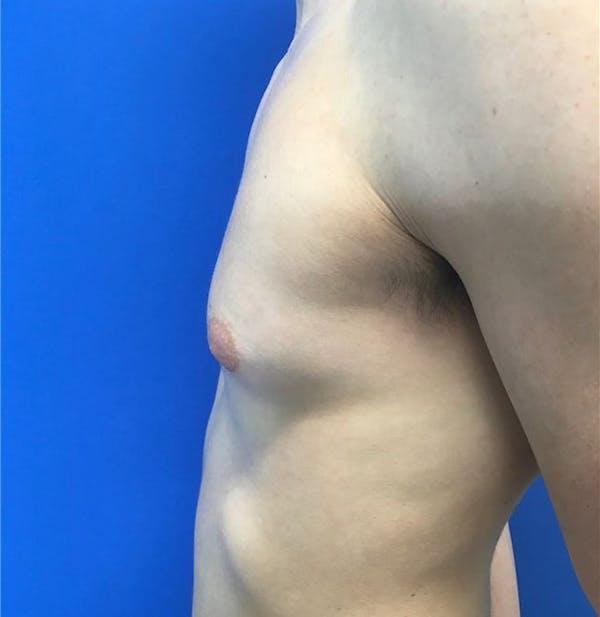 Gynecomastia Gallery - Patient 45390979 - Image 5