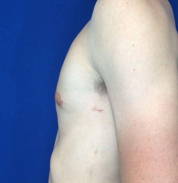 Gynecomastia Gallery - Patient 45390979 - Image 6