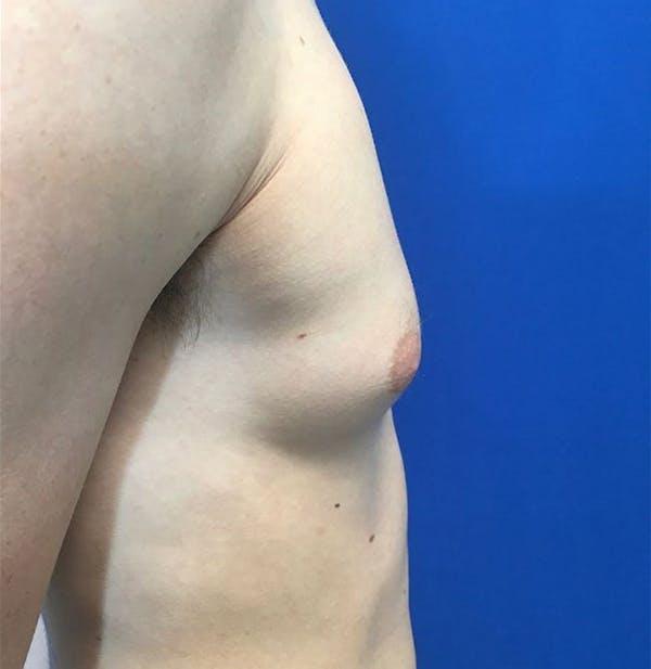 Gynecomastia Gallery - Patient 45390979 - Image 7