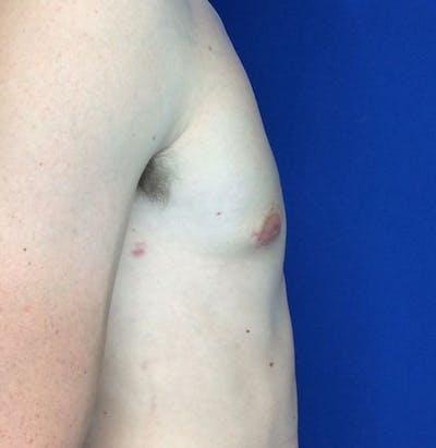 Gynecomastia Gallery - Patient 45390979 - Image 8