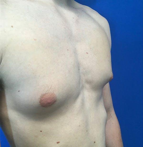 Gynecomastia Gallery - Patient 45390979 - Image 9