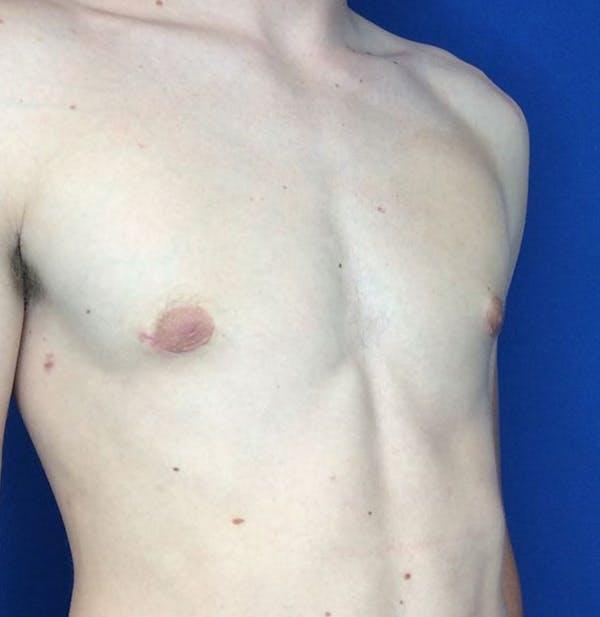 Gynecomastia Gallery - Patient 45390979 - Image 10