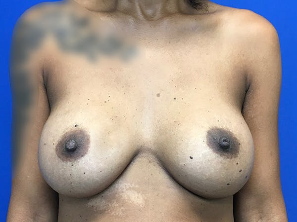 Breast Augmentation Gallery - Patient 47122206 - Image 2