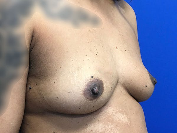 Breast Augmentation Gallery - Patient 47122206 - Image 3