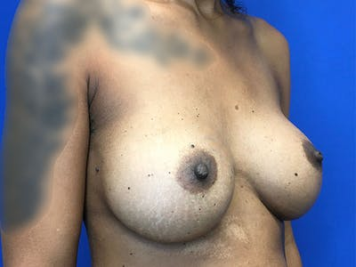 Breast Augmentation Gallery - Patient 47122206 - Image 4