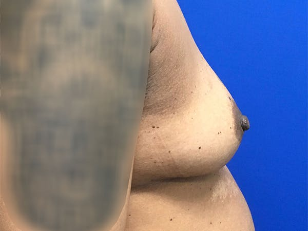 Breast Augmentation Gallery - Patient 47122206 - Image 5