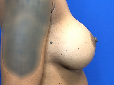 Breast Augmentation Gallery - Patient 47122206 - Image 6