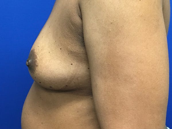 Breast Augmentation Gallery - Patient 47122206 - Image 7